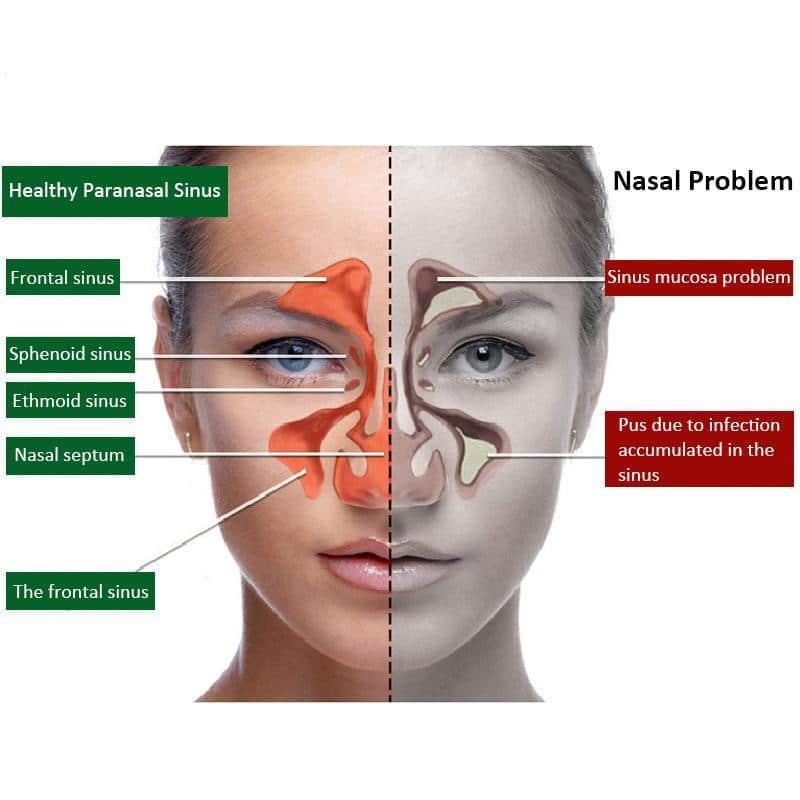 Pulverizador nasal para el cuidado de la nariz, rinitis y sinusitis crónica