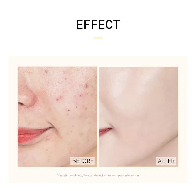 Mascarilla facial hidratante de Caracol Sakura, antiarrugas, hidratante, cuidado de la piel