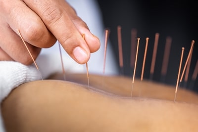 Medicina china acupuntura